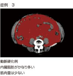 内臓脂肪CTによる動脈硬化の症例