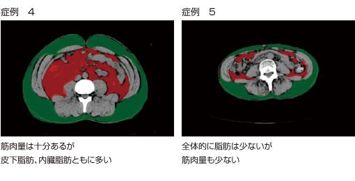 内臓脂肪CTによる筋肉量の測定